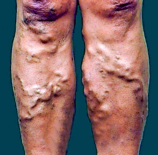 Tako obolele vene terjajo zdravniško kontrolo in primerno  zdravljenje.