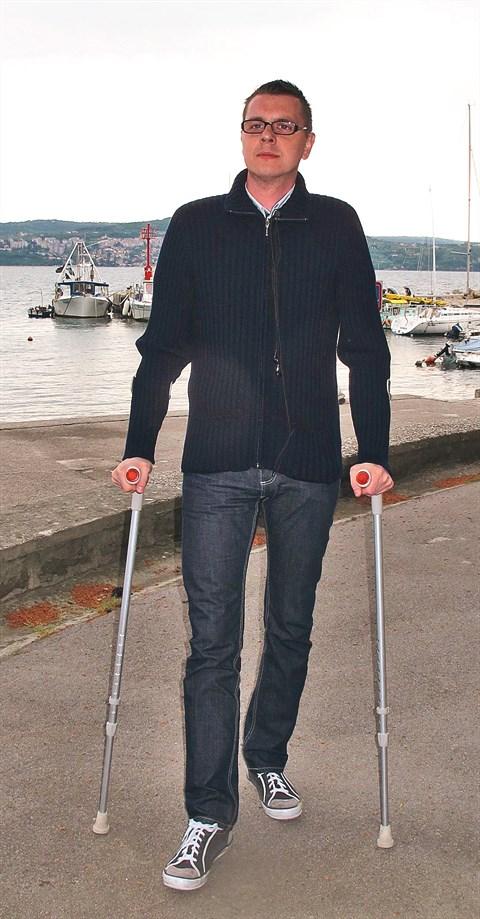 Visoka in suhljata postava je eden do najznačilnejših znakov Marfanovega sindroma