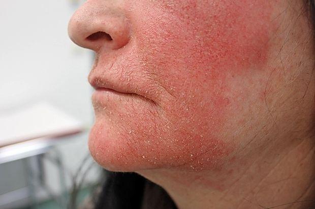Alergijska reakcija na obrazu na kozmetični izdelek