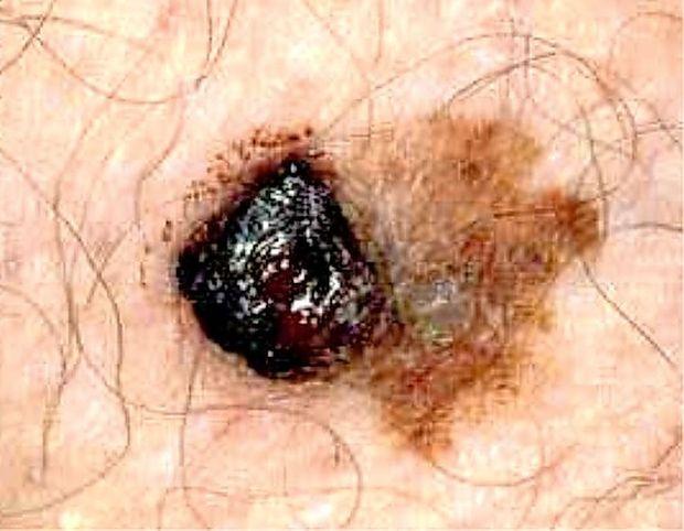 Letos izredno zanimanje za brezplačne preglede kože