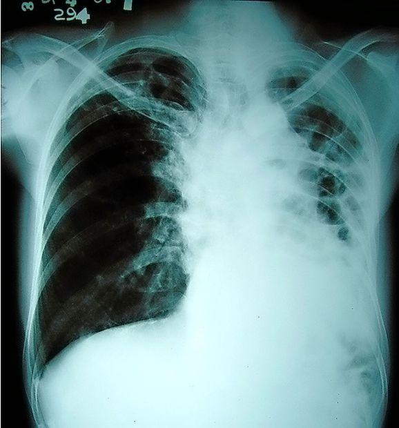 S tuberkolozo se občasno soočamo tudi pri nas