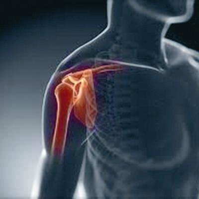 Sklepno o ortopediji